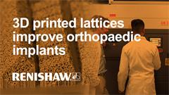 3D printed lattices improve orthopaedic implants